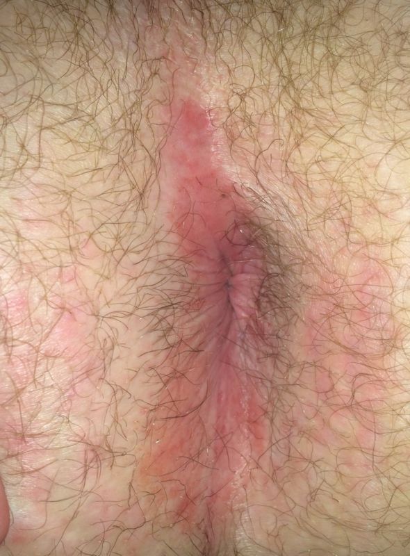 Jet S. reccomend Infection in skin around anus