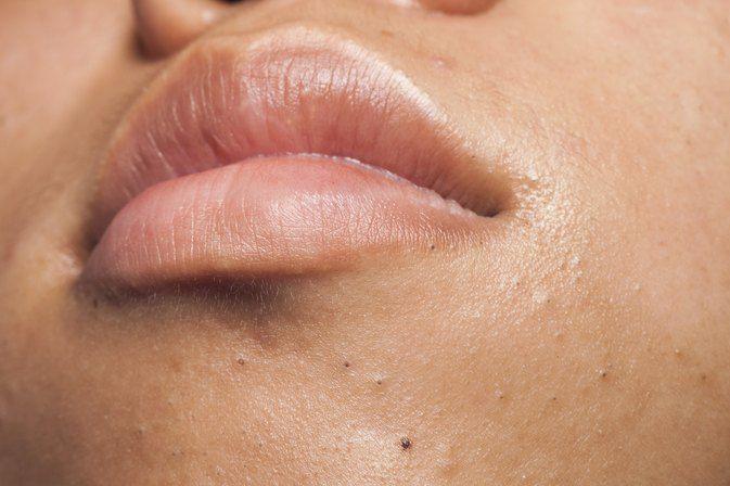 Ember reccomend Facial tiny bumps