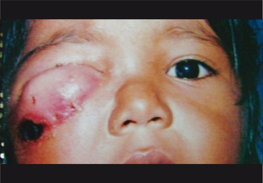 best of Icd 9 cellulitis Facial