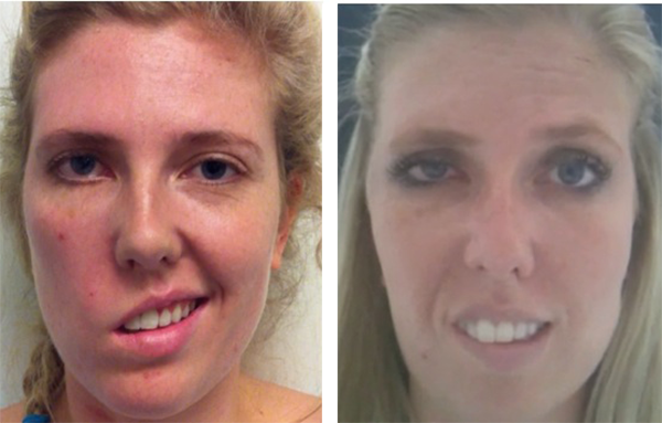 Sling facial paraylsis reconstruction