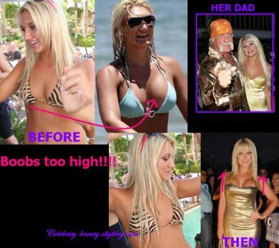 Brooke hogan boob job