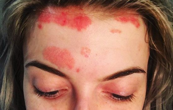 Rooster reccomend Facial psoriasis photo