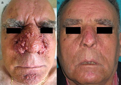 Treatment for fibrous papules facial angiofibroma