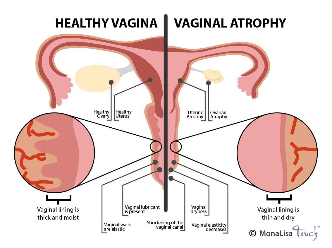 Vagina vulva pics