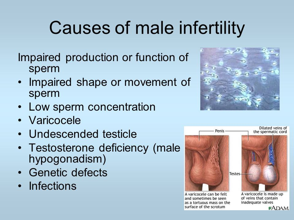 best of Sperm Impaired movement of