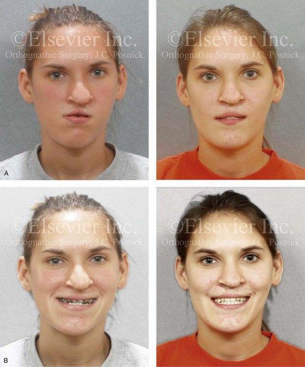 Posnick center for facial plastic surgery