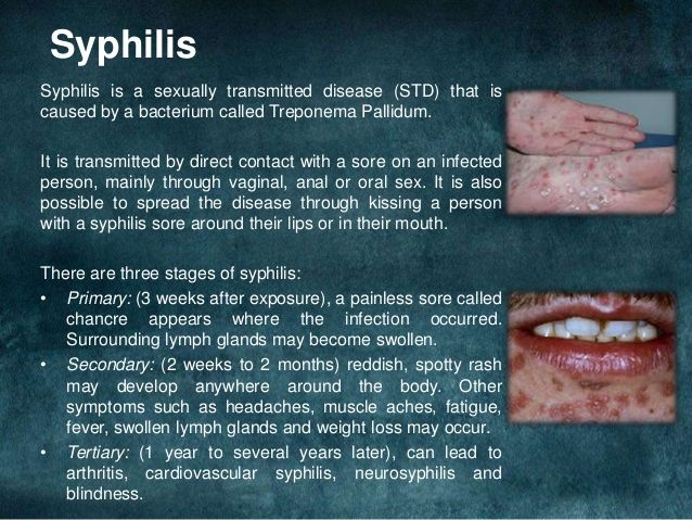 Syphilis and oral sex