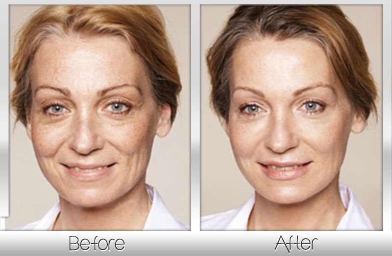 best of Are that Non surgical offered mages at facial enhancements youthful