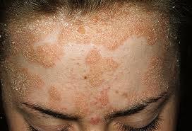Dart reccomend Facial psoriasis photo