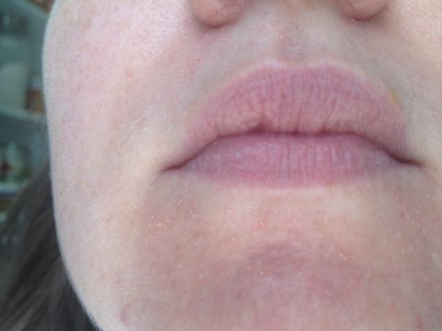 best of Bumps Facial tiny