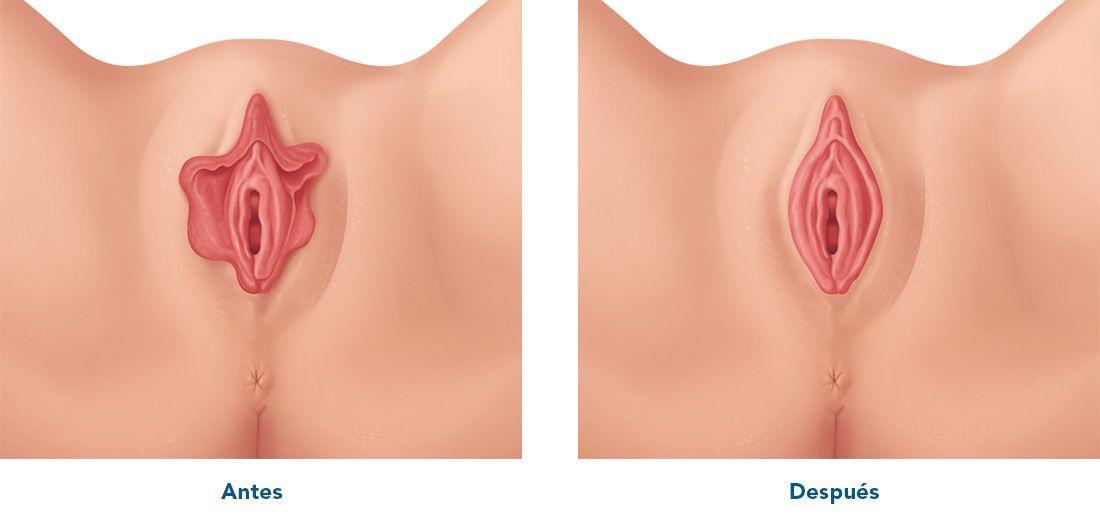 Scavenger reccomend Abnormally large vulva