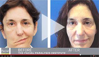 Los angeles facial paralysis