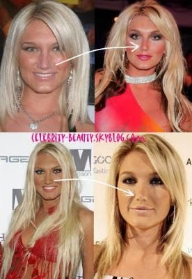 Speed reccomend Brooke hogan boob job