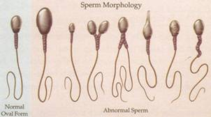 Impaired movement of sperm