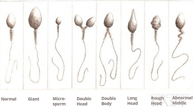 Marigold reccomend 2 headed sperm