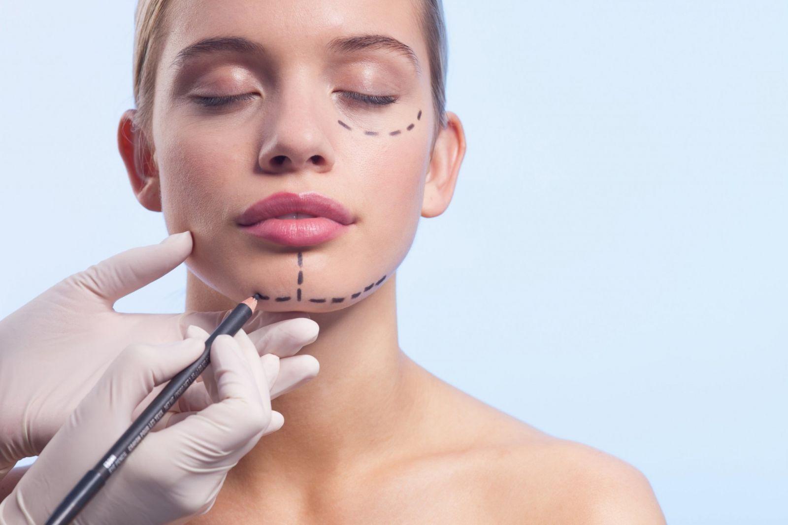 A facial surgery