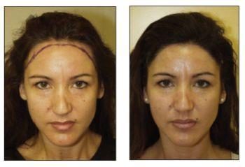 best of Facial line Female hair