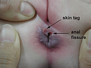 Ready help on area anal pimples white sounds tempting