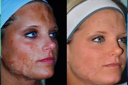 Burns before facial and image after