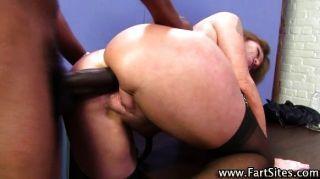 Darla crane principal anal