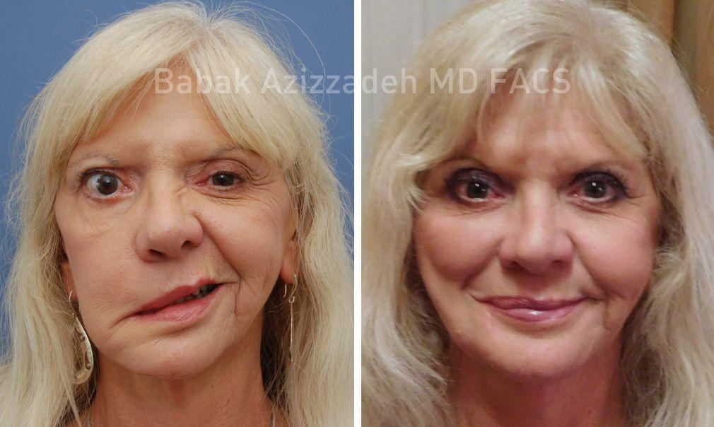 Inventor reccomend Sling facial paraylsis reconstruction