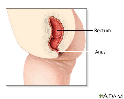 best of Rectum Birth defects anus