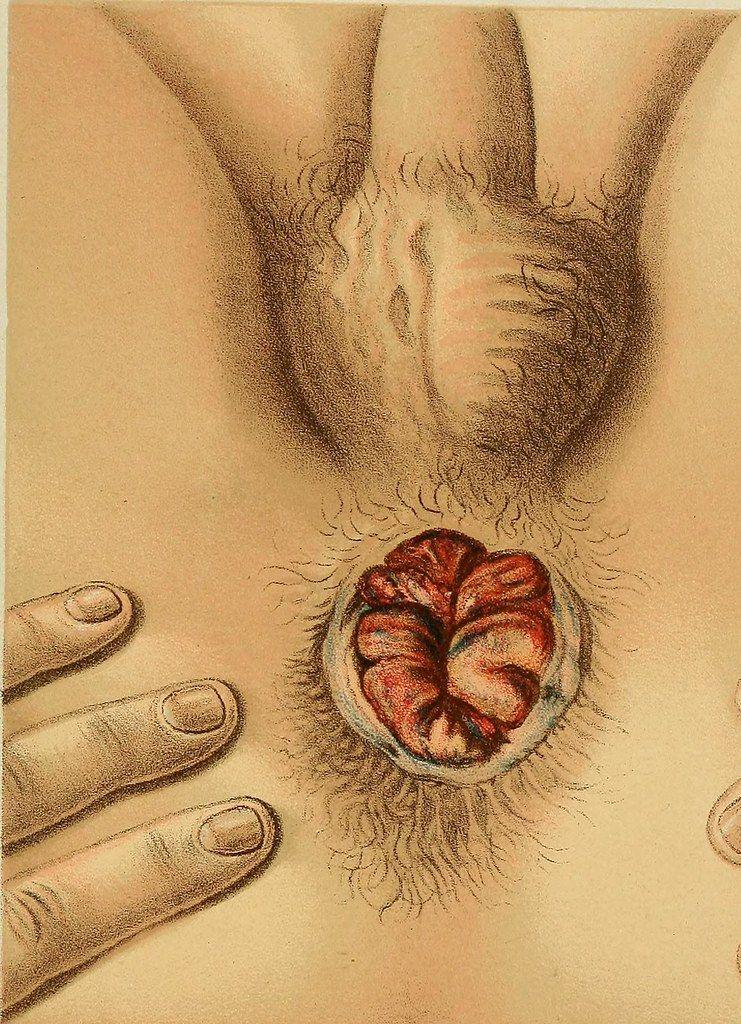 Belly reccomend Explore his anus