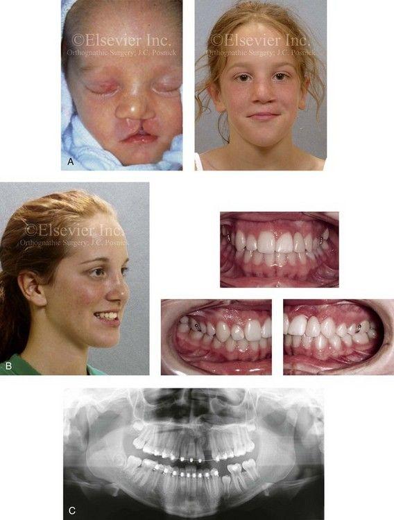 Champ reccomend Posnick center for facial plastic surgery