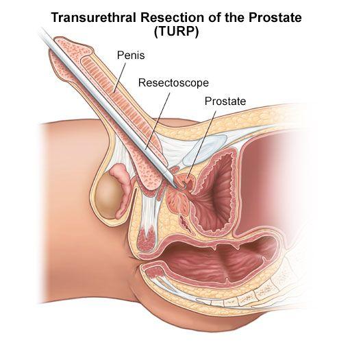 Athena reccomend Male orgasm prostate