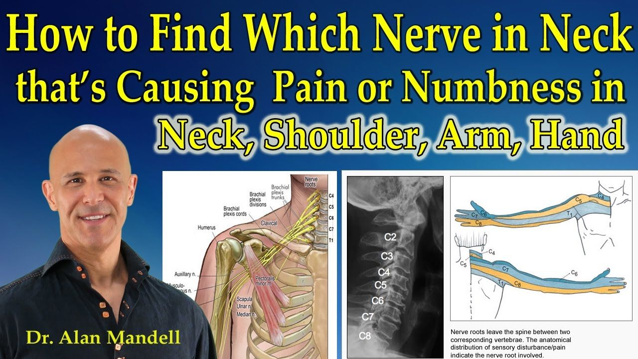 Pinched nerve and facial numbness