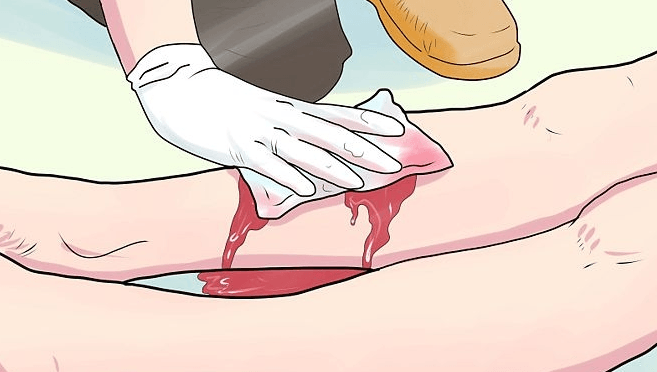 Cake reccomend Treatment of nicked vein shaved leg