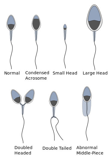 Vitamins and sperm morphology